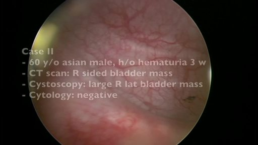 Blue Light Cystoscopy™ with Cysview® patient case study