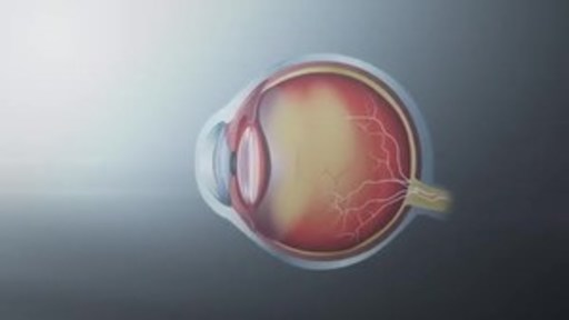 VIDEO: Helping Canadians See Clearly After 40