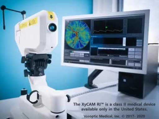 The XyCAM RI provides dynamic retinal blood flow information noninvasively.