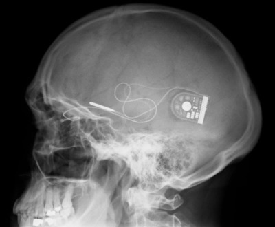 The CE marked Alpha IMS, manufactured by Retina Implant AG, is a 3 x 3 millimeter micro-electronic chip containing approximately 1,500 electrodes, which is implanted directly under the retina to restore artificial vision.  (PRNewsFoto/Retina Implant AG)