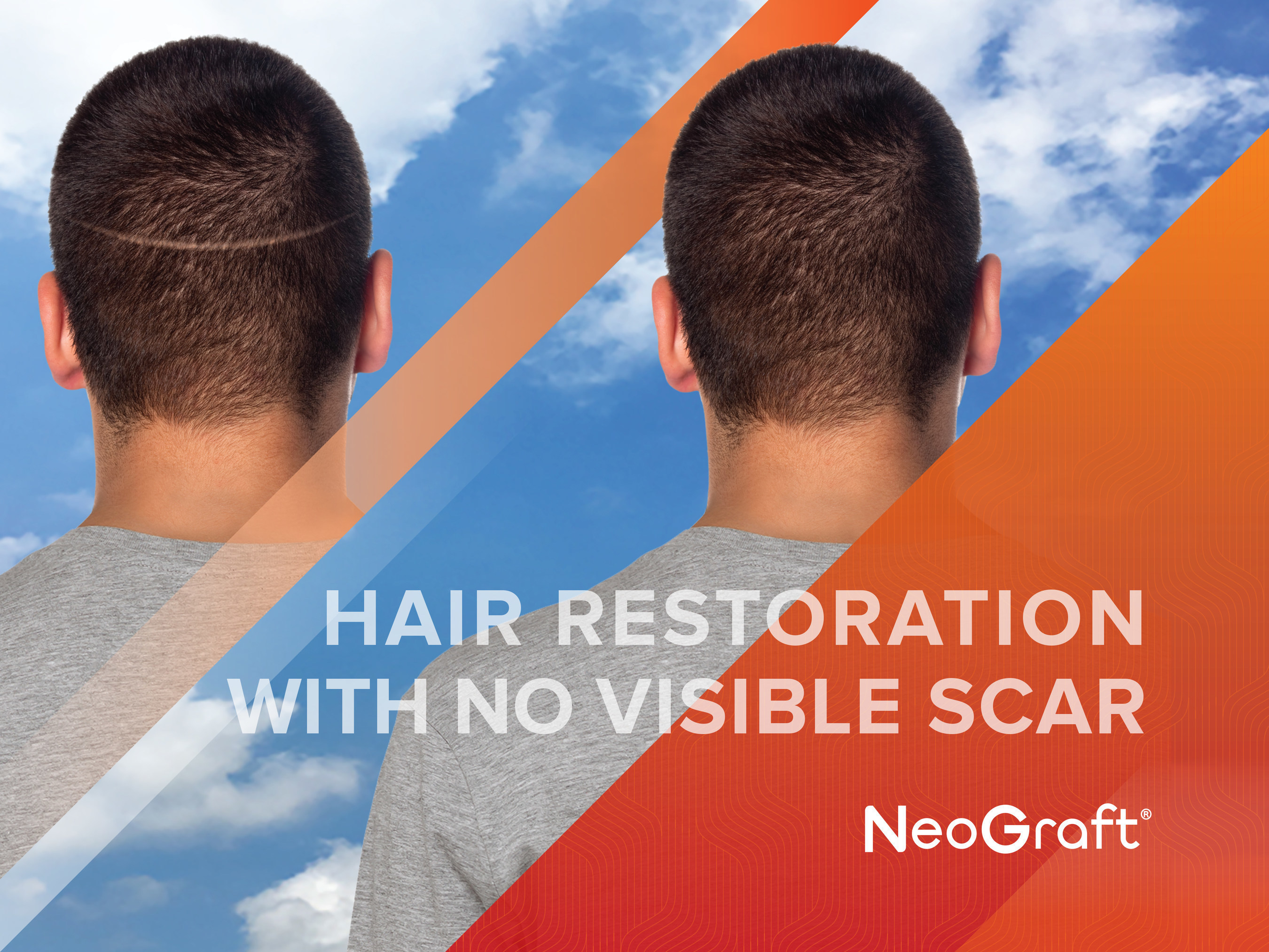 NeoGraft(R) is the highest rated hair transplant surgery on RealSelf.com NeoGraft(R) is the first FDA-cleared follicular unit harvesting and implantation system that extracts individual hair follicles. Compared to the traditional strip method, a NeoGraft(R) procedure is minimally invasive, requires significantly less recovery time, and has 20 years of clinically proven results. NeoGraft(R) Solution's vision is to be the world leader in hair restoration, supplying the latest innovations in technology, education, and patient care.