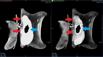 Comparison of a conventional CT image (left) with the image obtained with the IQon (right). The observed 'density' in the conventional CT image - caused by the pyrite infill visible between the spinal canal and the main body of the vertebra - is removed in the IQon Spectral CT image, revealing not only the bone structure in the affected region (red arrows), but also the structure of the pyrite infill itself (blue arrows).