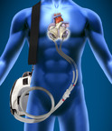 Similar to a heart transplant, the SynCardia temporary Total Artificial Heart replaces both failing heart ventricles and the four native heart valves. It is the only device that eliminates the symptoms and source of end-stage biventricular heart failure.  (PRNewsFoto/SynCardia Systems, Inc.)