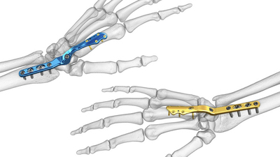 Designed to reduce the risk of soft tissue irritation associated with traditional wrist fusion plates, Acumed's new Total Wrist Fusion Plating System, fuses the carpal bones together to treat post-traumatic arthritis. (PRNewsFoto/Acumed)