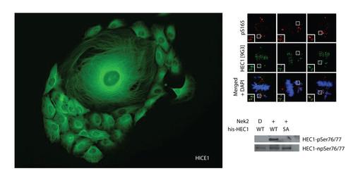 Hec1Hice1Genetex.  (PRNewsFoto/Genetex)