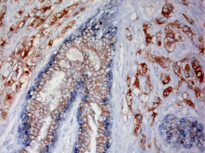 Breast cancer stained with the optimized dual stain assay