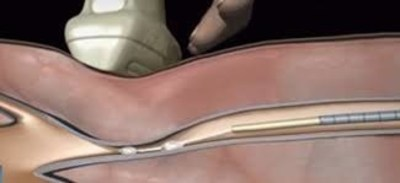 VenaSeal by Medtronic for Varicose Vein Treatment