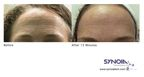 Synoia to Launch New BTX, Collagen and Hyaluronic Infusions for the Revolutionary WISHPro System at CosmoProf Asia, HK 2012