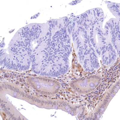 SP218 staining PTEN loss on colon adenocarcinoma sample. (PRNewsFoto/Spring Bioscience)