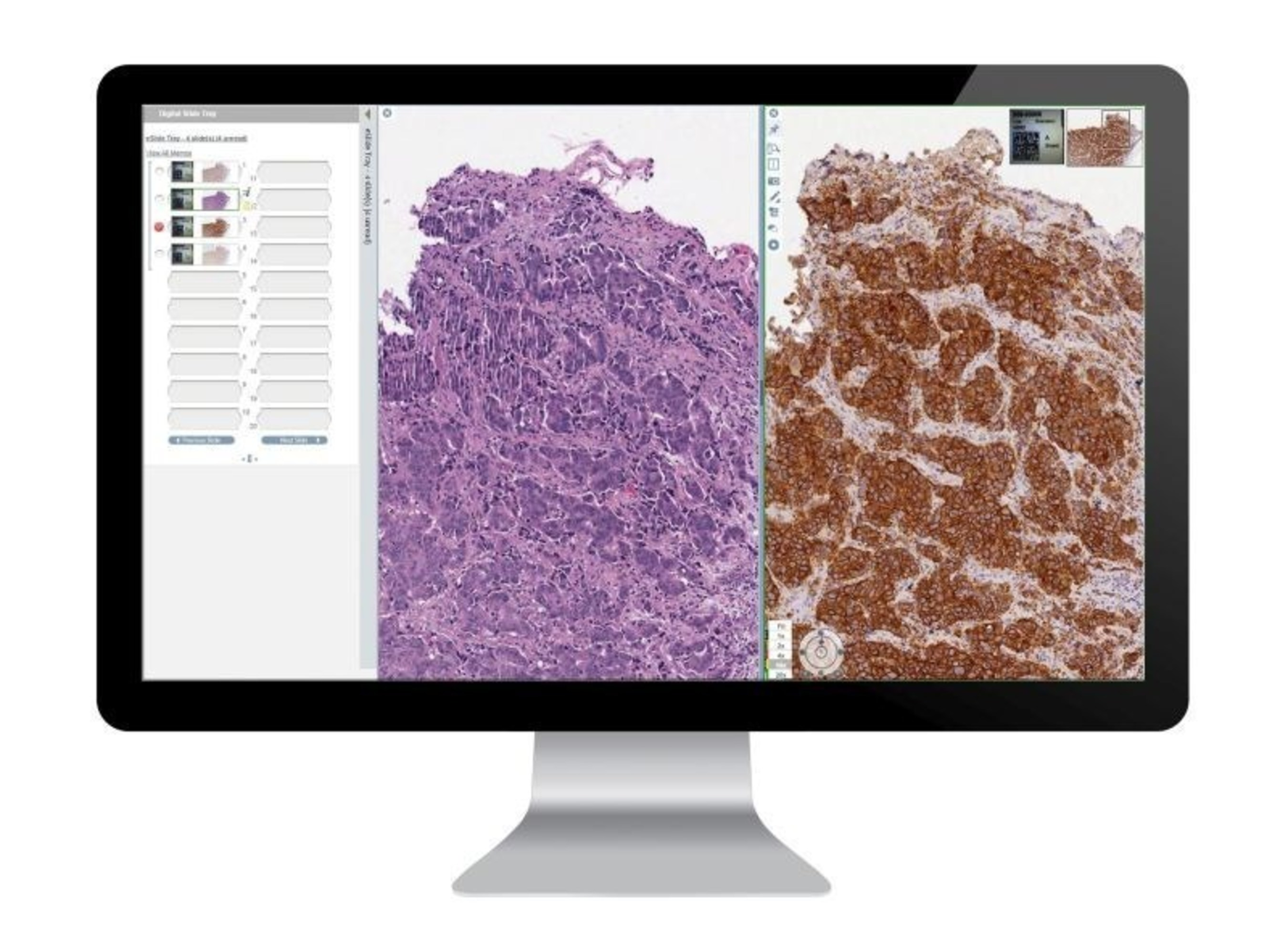 Complete Digital Pathology Solutions from Leica BiosystemsAperio ePathology Solutions provide full scalability and optimal performance from single-site installations to multi-site global hub and spoke networks. With dedicated workflows for healthcare, research and biopharma, coupled with an intuitive interface, the Aperio eSlide Manager 12.3 is the ideal solution to meet the diverse needs of both entry-level and enterprise digital pathology users. For Research Use Only. Not for use in diagnostic procedures. (PRNewsFoto/Leica Biosystems) (PRNewsFoto/Leica Biosystems)