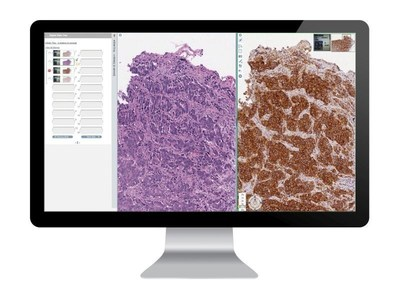 Complete Digital Pathology Solutions from Leica BiosystemsAperio ePathology Solutions provide full scalability and optimal performance from single-site installations to multi-site global hub and spoke networks. With dedicated workflows for healthcare, research and biopharma, coupled with an intuitive interface, the Aperio eSlide Manager 12.3 is the ideal solution to meet the diverse needs of both entry-level and enterprise digital pathology users. For Research Use Only. Not for use in diagnostic procedures. (PRNewsFoto/Leica Biosystems)