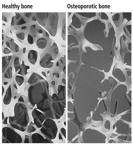 In contrast to normal bone, osteoporotic bone is porous, fragile and breaks easily. The 2015 World Osteoporosis  ...