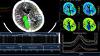 Philips enhances neurological diagnosis with the introduction of IntelliSpace Portal 9.0(1)
