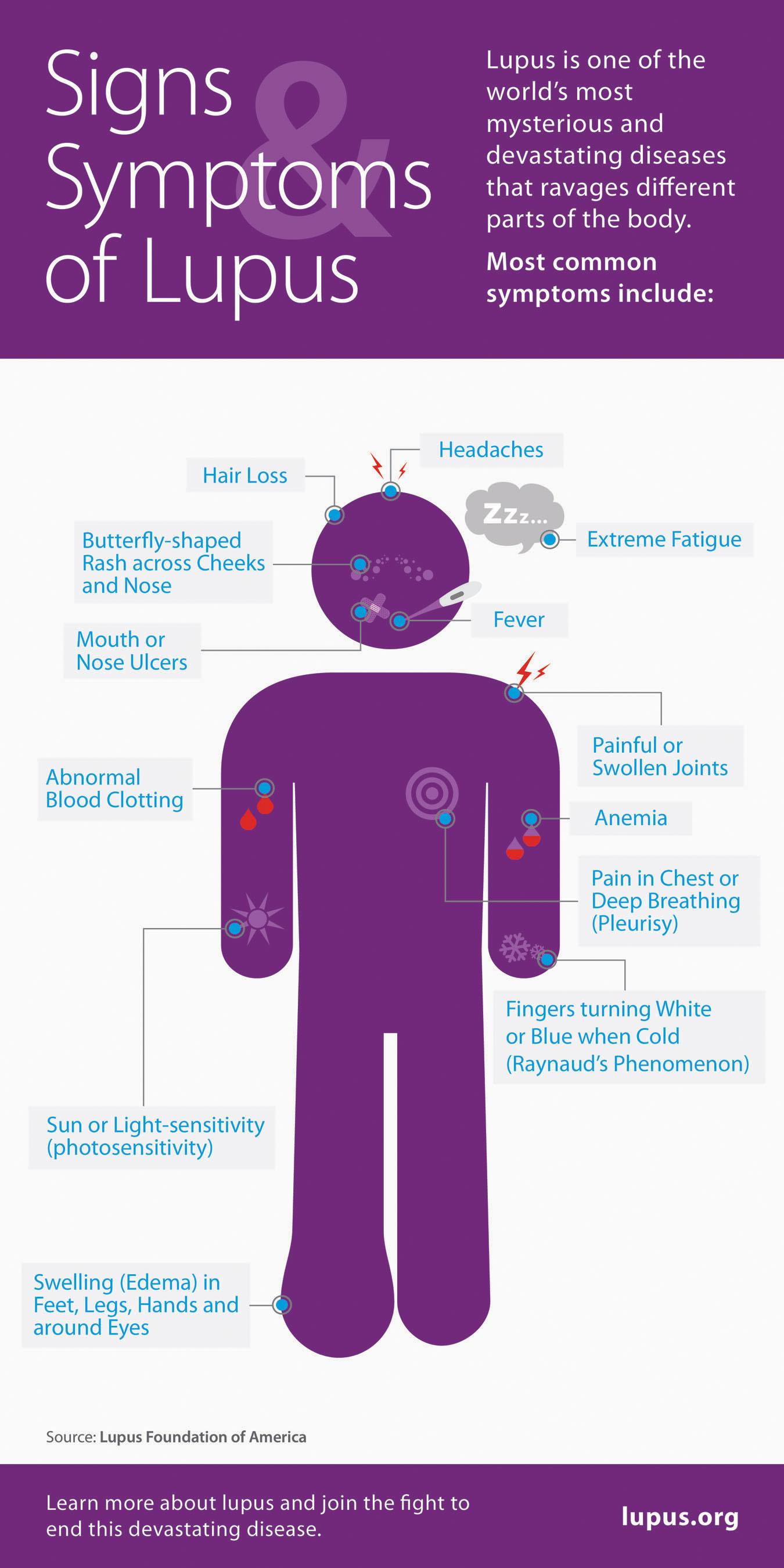 Lupus Signs and Symptoms Infographic.  (PRNewsFoto/Lupus Foundation of America)