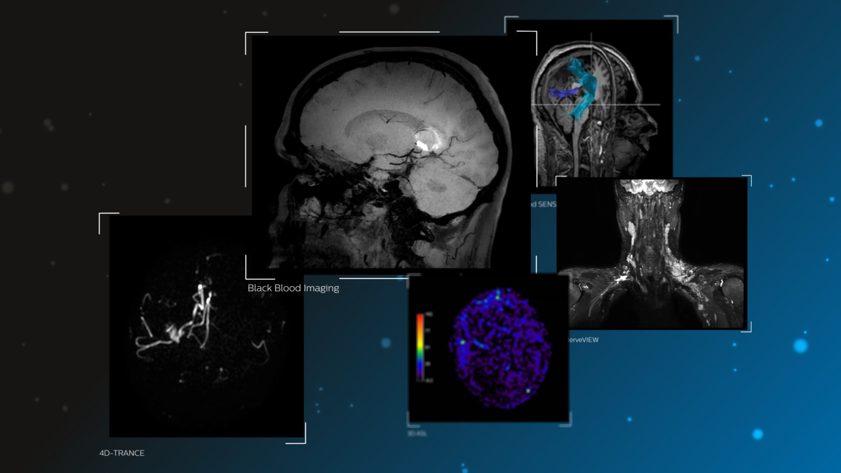 Philips to unveil suite of advanced MR-based software applications for assessment of neurological disorders at RSNA 2016