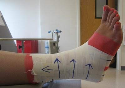 Leer las instrucciones paso a paso para grabar un tobillo, por cortesia de los especialistas del pie y del tobillo ortopedicos de AOFAS.