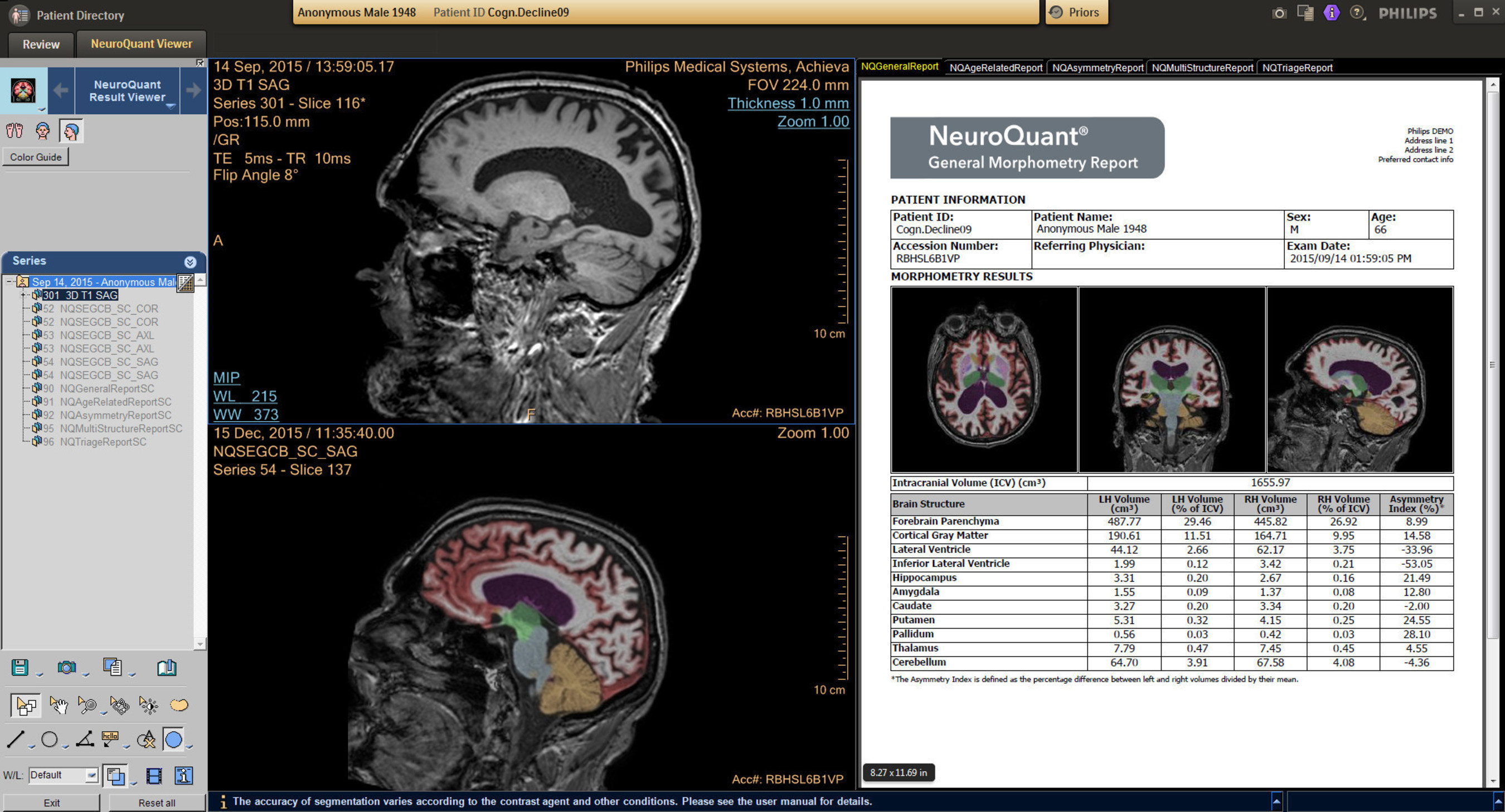 Another feature of IntelliSpace Portal 9.0 is the inclusion of the NeuroQuant(R) application (Cortechs Labs, Inc.), which enables clinicians to objectively quantify brain atrophy.