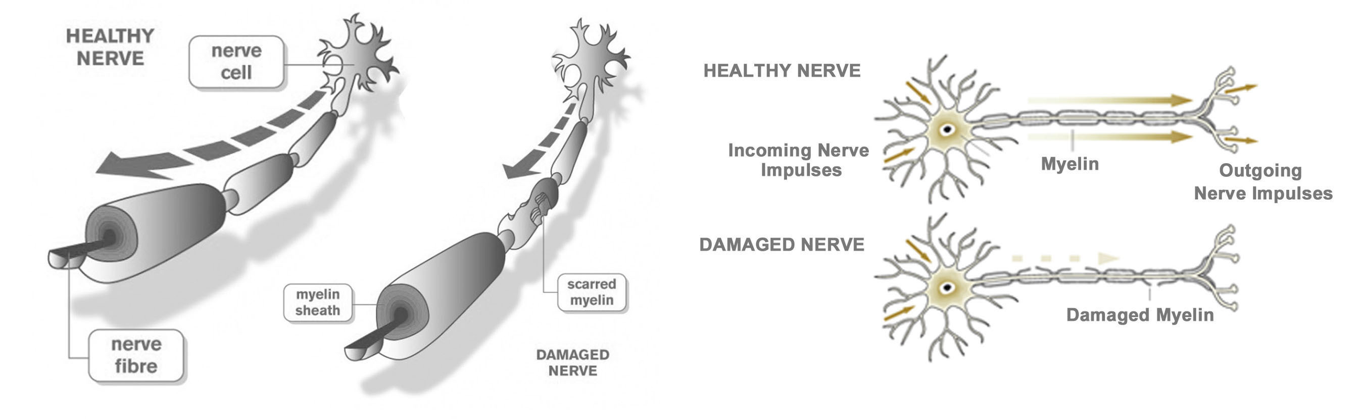 StemGenex™ on Adult Stem Cell-Based Therapy for Multiple Sclerosis