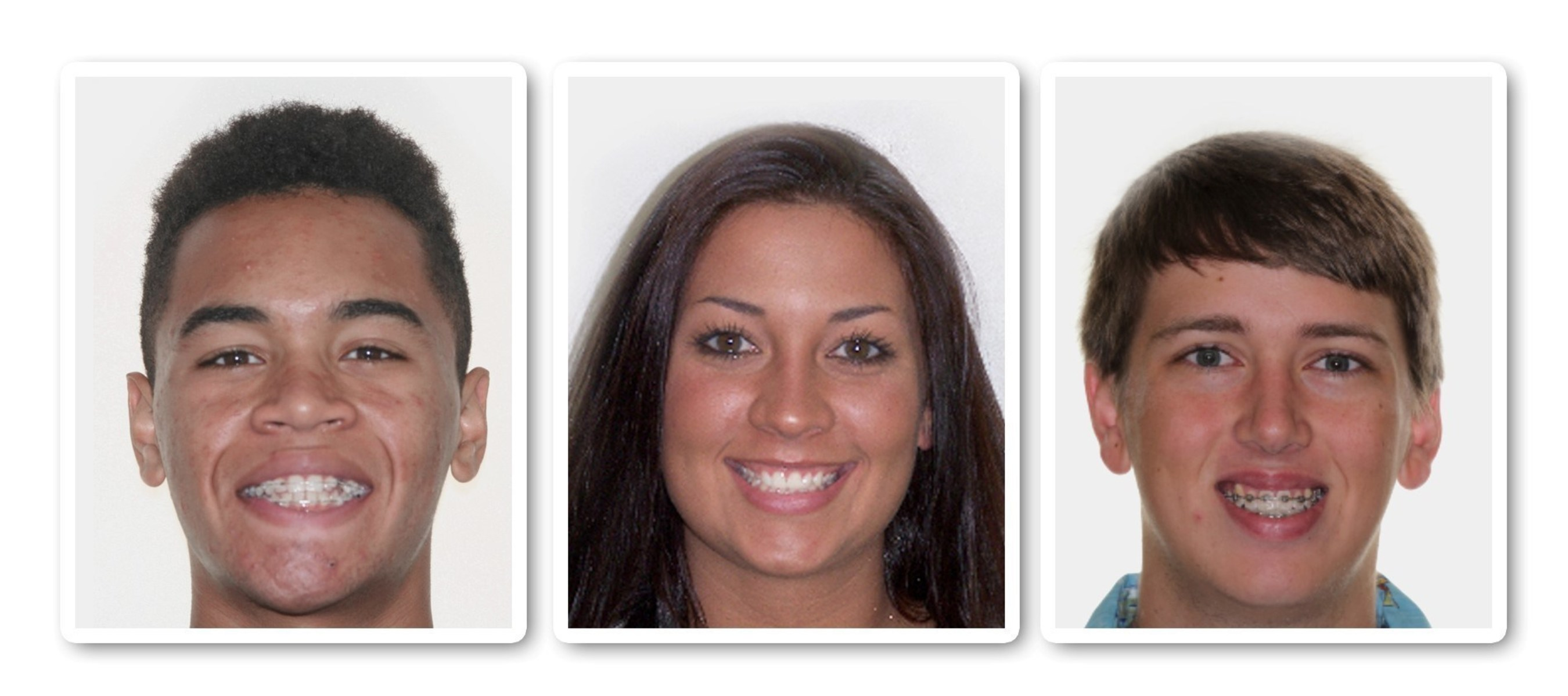 Orthodontic patients (from left to right) Rey Rivera, Tiffany Tapler and Chase Bethay choose AcceleDent to speed up their treatment. AcceleDent is an FDA-cleared, Class II medical device that speeds orthodontic tooth movement by as much as 50 percent.