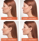Kybella Treatment Before and After. The top picture is (2) treatments. The bottom is after (4) treatments.