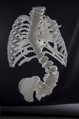 A 3-D replica of scoliosis, created using CT images.