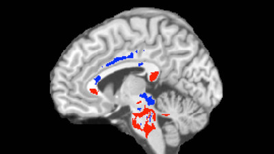 This image of a concussion patient's brain shows low FA areas (red) probably signifying injured white matter, plus high FA areas (blue) perhaps indicating more efficient white-matter connections  compensating for concussion damage. A large amount of high FA predicts recovery from concussion.