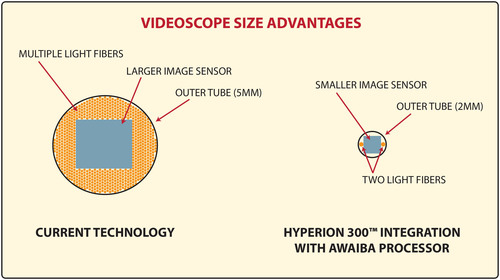 The Hyperion 300(TM) and Awaiba Video Sensor product integration dramatically reduces the size of the flexible endoscope rendering it small enough for a 2mm incision, and inexpensive enough to make it disposable and suitable for single use. (PRNewsFoto/Nathaniel Group, Inc.) (PRNewsFoto/NATHANIEL GROUP, INC.)