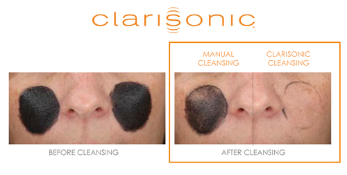 In an eye-opening study, Clarisonic used a tinted pollution marker comprised of pollutants from PM 0.3 - PM 5.0 to investigate the efficacy of removing barely visible pollution particles.  The findings proved the Clarisonic cleansing device has the cleansing power to remove 30 times more harmful age-accelerating pollution than manual cleansing.  (PRNewsFoto/Clarisonic)