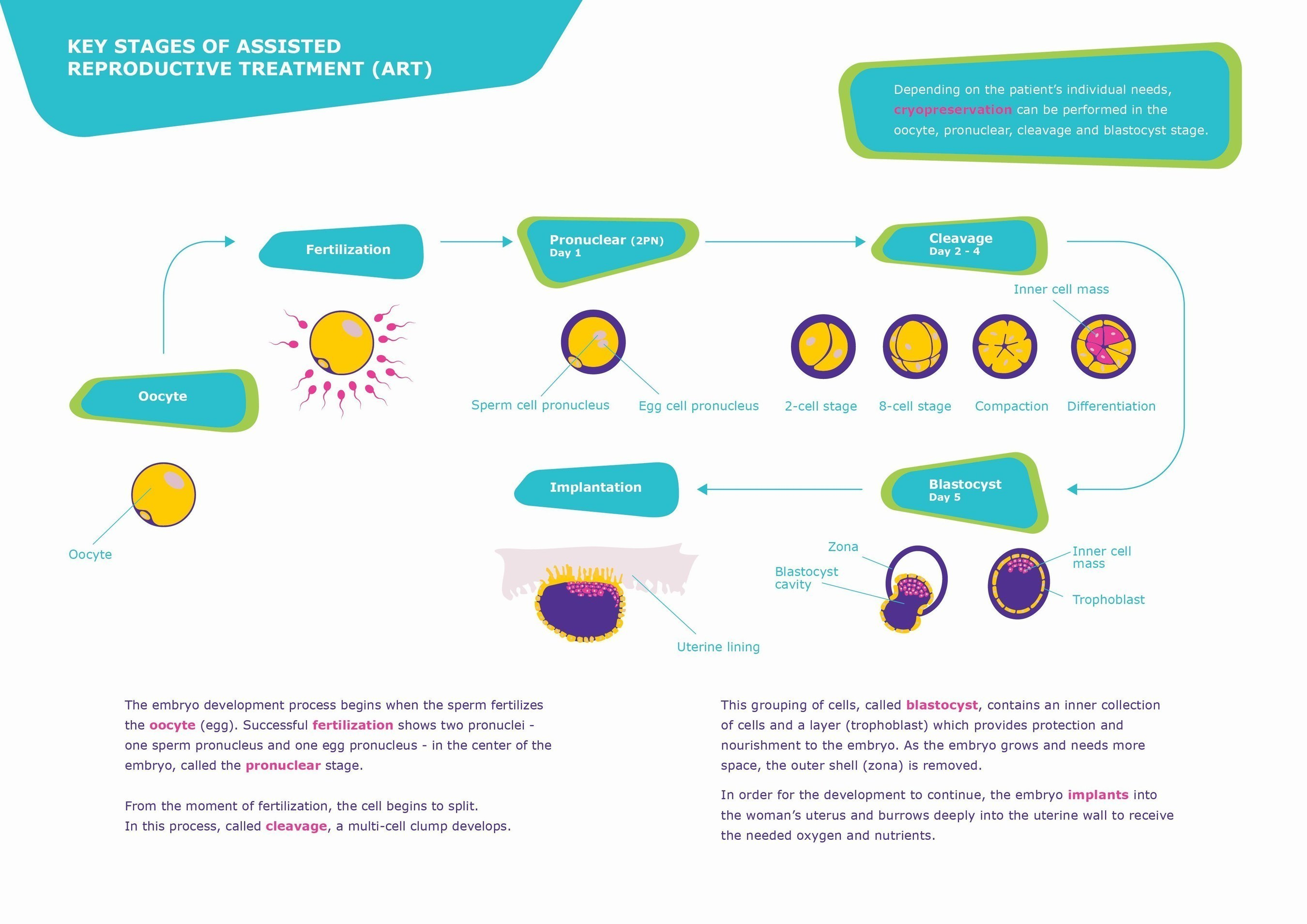 Key stages of Assisted Reproductive Treatment (ART) highlighting cryopreservation (PRNewsFoto/Merck)