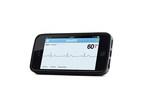 AliveCor Heart Monitor (PRNewsFoto/AliveCor, Inc.)