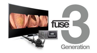 EndoChoice(R) Fuse(R) Full Spectrum Endoscopy - Generation 3