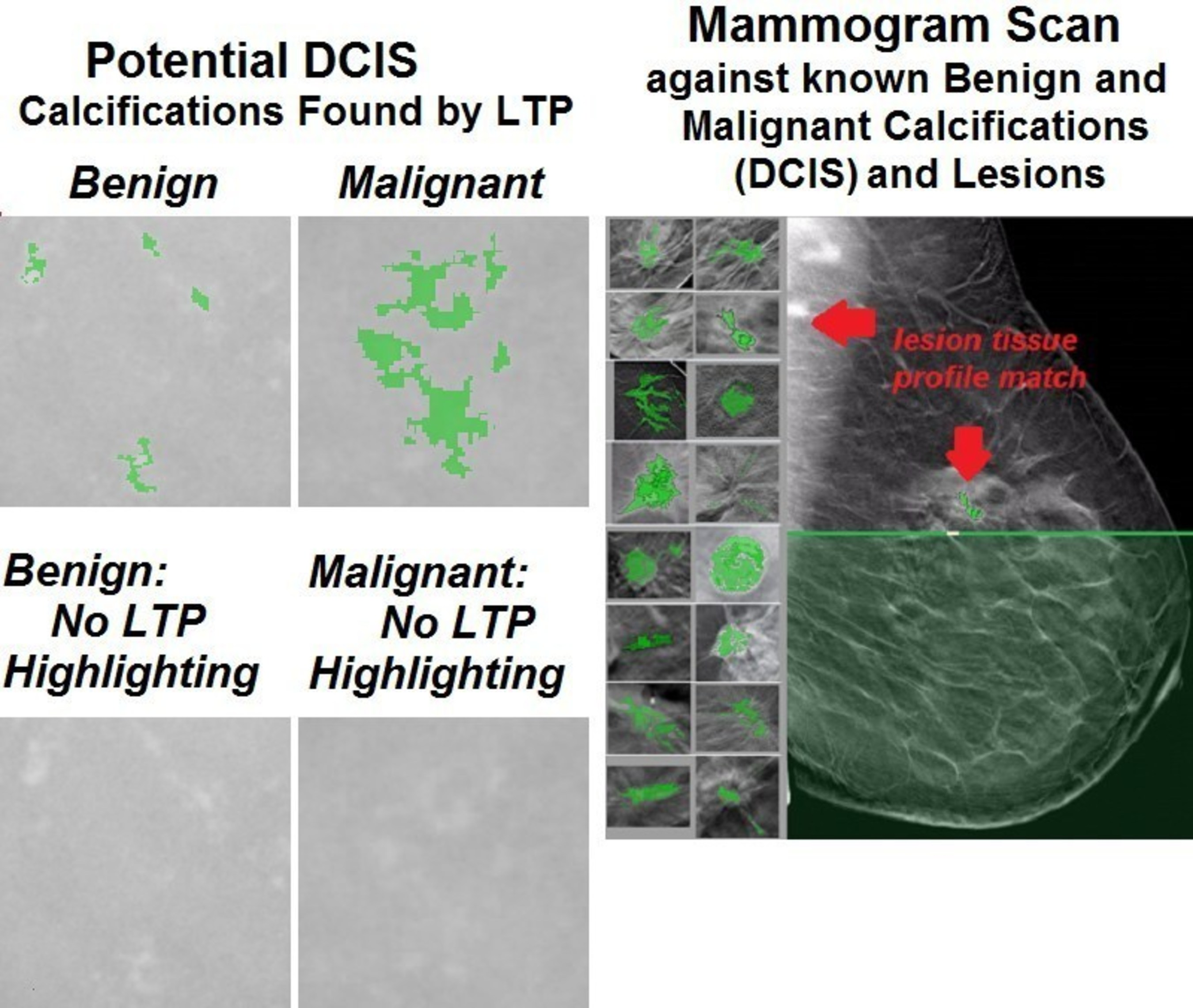 Ltp Finds And Separates Benign From Malignant Dcis And Breast Cancer