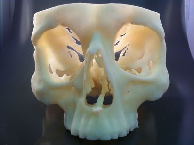Cranium produced on a Stratasys Objet30Pro 3D Printer, used to validate patient surgery prior to the operation