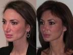 Aesthetic Facial Balancing (PRNewsFoto/Dr. Rian Maercks)