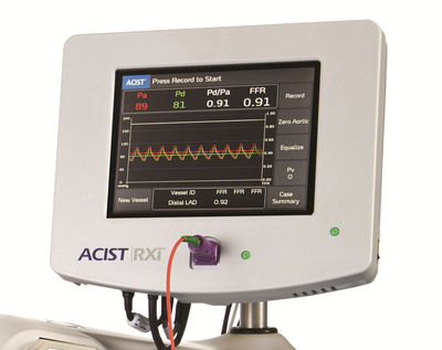 The new ACIST|RXi(TM) Rapid Exchange FFR System - the world's first Rapid Exchange FFR system - features new technology designed to provide physicians with a fast and easy way to perform Fractional Flow Reserve (FFR) procedures.  (PRNewsFoto/ACIST Medical Systems, Inc.)