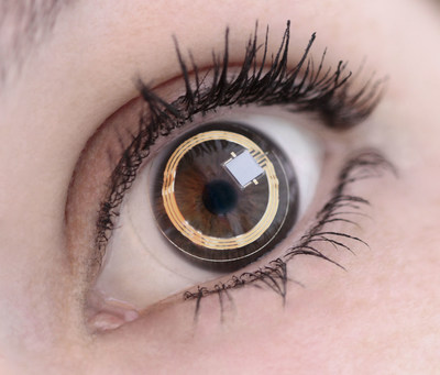 Smart contact lens can help identify patients who have quickly progressing glaucoma. Courtesy of Sensimed.