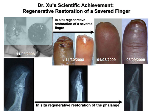 Mr. Wang, a 56 year-old male, proximal finger (including the phalanx) of his left thumb was severed from the lower end of nail root due to compression by a car door on Oct. 30, 2008. The first medical treatment post injury was replantation of the severed part of the finger, but 6 days later the replanted part necrotized. The finger was removed by surgical operation, and the therapy of in situ regenerative restoration was performed. The severed finger healed by complete regenerative restoration. Source: Human Body Regenerative Restoration ...