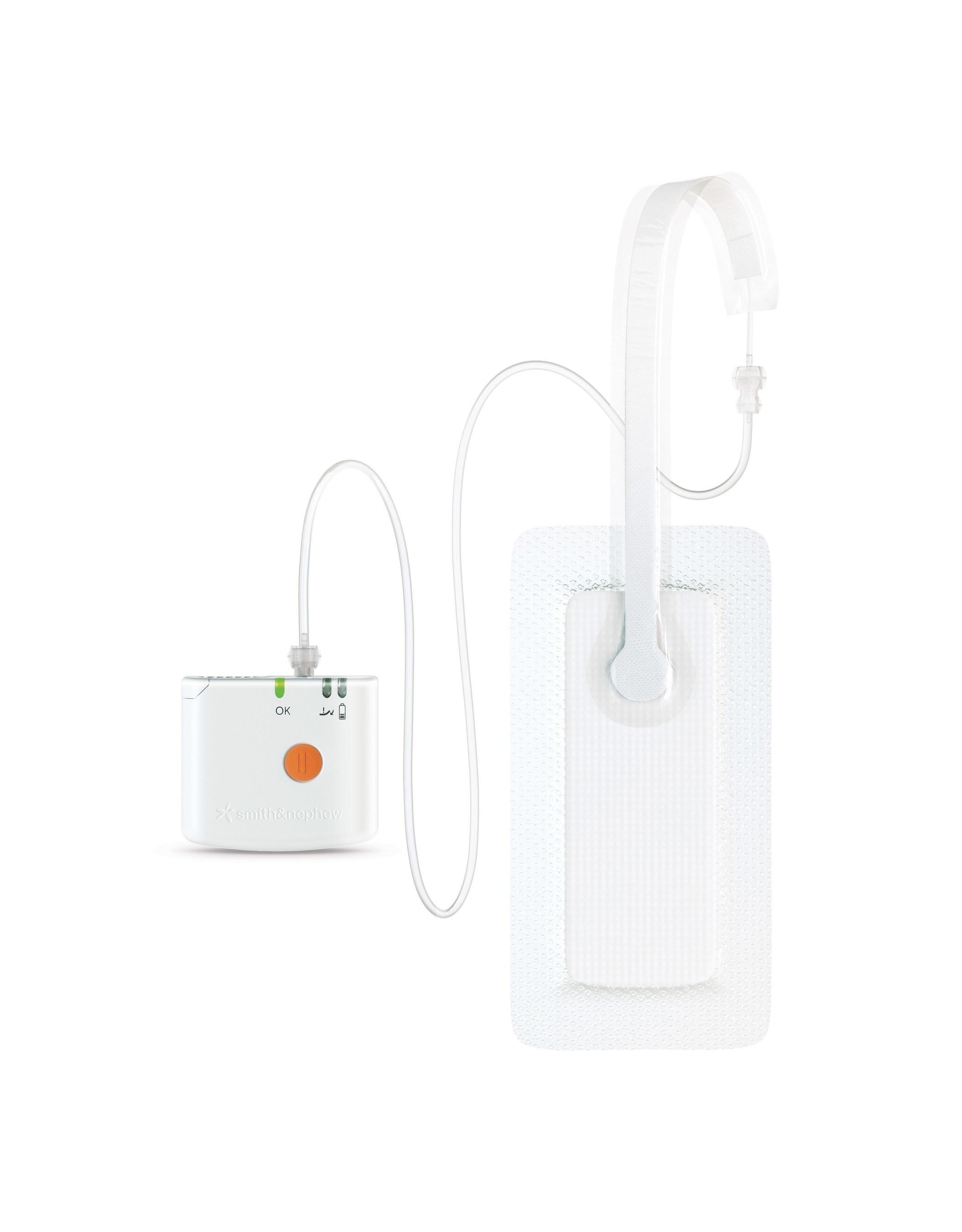 PICO(TM) Single Use Negative Pressure Wound Therapy