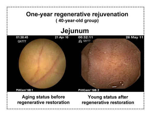 One year regenerative rejuvenation results for 40 year old person.  (PRNewsFoto/MEBO INTERNATIONAL)