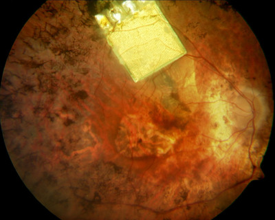 Retina Implant AG's microchip is implanted below the retina, specifically in the macular region. Research has shown the macular region is the ideal location because this is where light-sensitive photoreceptor cells are located which are responsible for producing clear images in normal-sighted people. Source: http://www.retinaimplant.de.  (PRNewsFoto/Retina Implant AG)