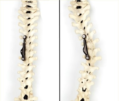 The ApiFix System for scoliosis: after implantation on curvature (at right) and after correction (at left).
