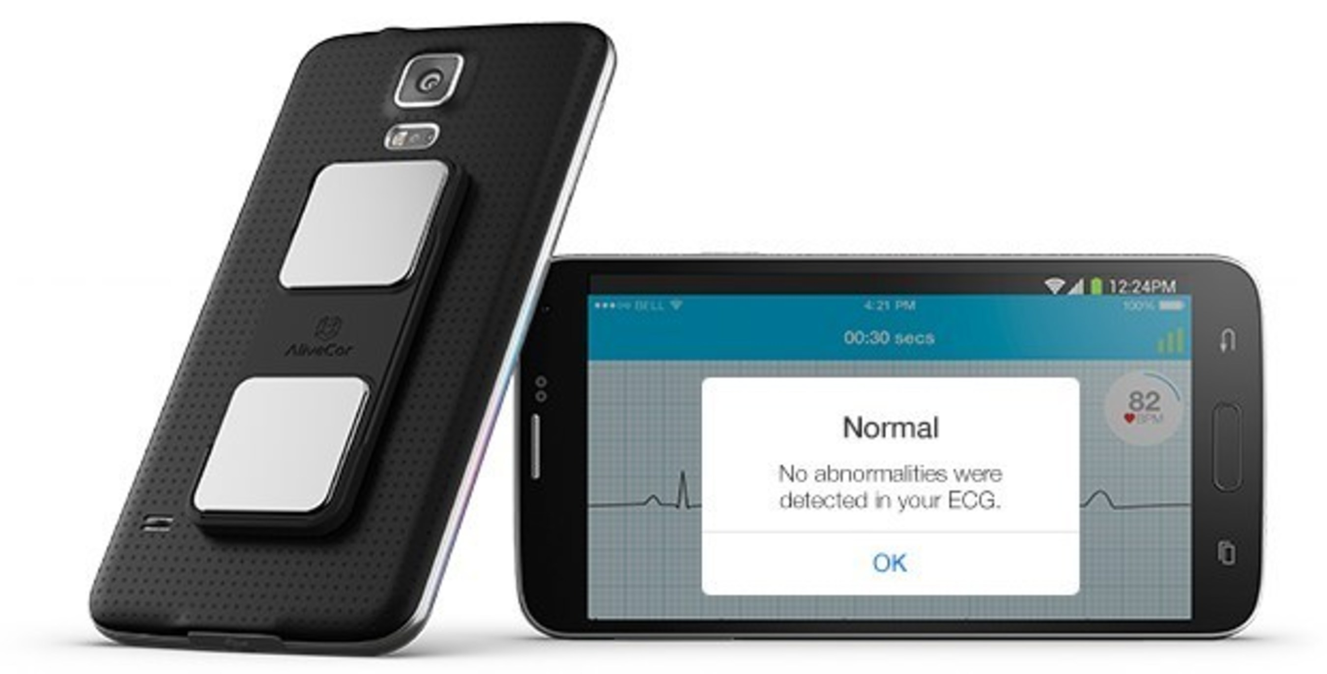 AliveCor Launches New App that Automatically Tells Patients When Their ECG Recording is Normal