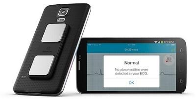 AliveECG's Normal Detector.