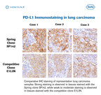 PD-L1 Immunostaining in lung carcinoma. Comparative IHC staining of representative lung carcinoma samples. Strong staining observed in tissues stained with Spring clone SP142, while weak to moderate staining is observed in tissues stained with competitive clone E1L3N. (PRNewsFoto/Spring Bioscience)