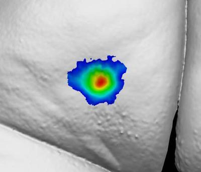 Patient 1227: Buttock Dimple at Day 1.  (PRNewsFoto/Auxilium Pharmaceuticals, Inc.)
