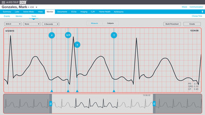 AirStrip secures U.S. patent for next-generation waveform interpretation via ECG visual calipers.