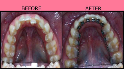 Before and After Treatment with AcceleDent.  (PRNewsFoto/OrthoAccel Technologies, Inc.)