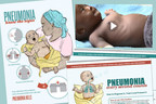 McCann Health Partners with Clinton Health Access Initiative, Unicef, USAID and Abt Associates To Launch New Pneumonia Prevention Campaign