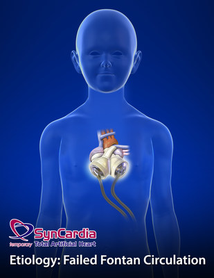 """Successful Use of the Total Artificial Heart in the Failing Fontan Circulation"" is a peer-reviewed case report that describes the implantation of the SynCardia Total Artificial Heart into a 13-year-old boy who was bridged to a heart transplant 61 days later. (PRNewsFoto/SynCardia Systems, Inc.)"