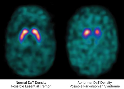 Images Comparing Normal vs. Abnormal DATscan Results
